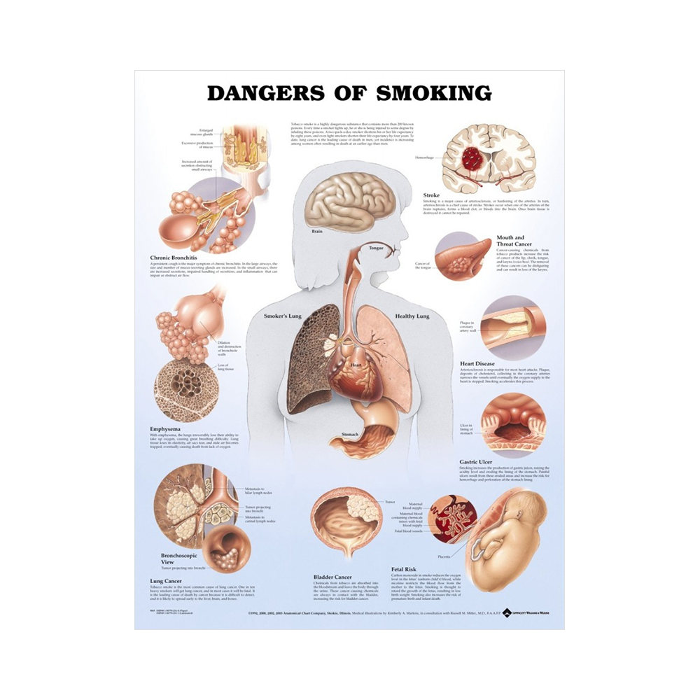 "Anatomisk Plansch ""Dangers of Smoking"""
