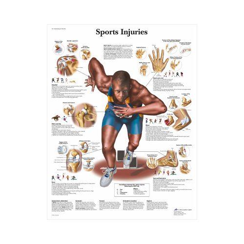 """Anatomisk Plansch """"Sports Injury"""" 66 x 51 cm"""