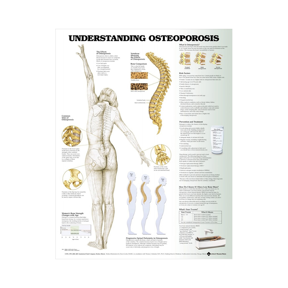 """Anatomisk Plansch """"Understanding Osteoporosis"""" 66 x 51 cm"""